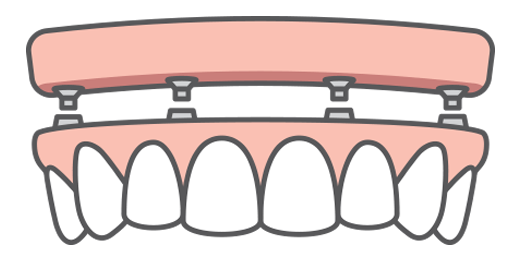 Illustration of a full upper implant denture being attached to four dental implants