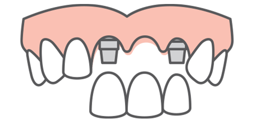 Illustration of a full upper arch with a three-tooth bridge being placed on two implant posts