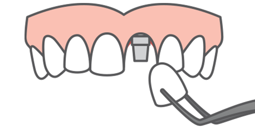 Illustration of a full upper arch with a crown being placed on an implant post, single tooth replacement